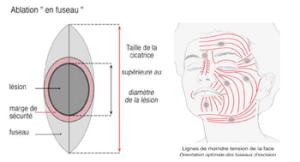 chirurgie cutanée