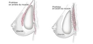 Positionnement des prothèses: rétro et pré-pectorale
