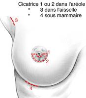 Voies d'abord des prothèses mammaires
