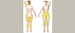 Zones de lipoaspiration
